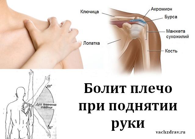 Болит Плечевой Сустав Левой Руки Чем Лечить