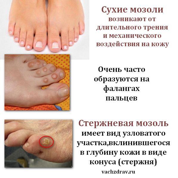 Стержневая мозоль на пальце